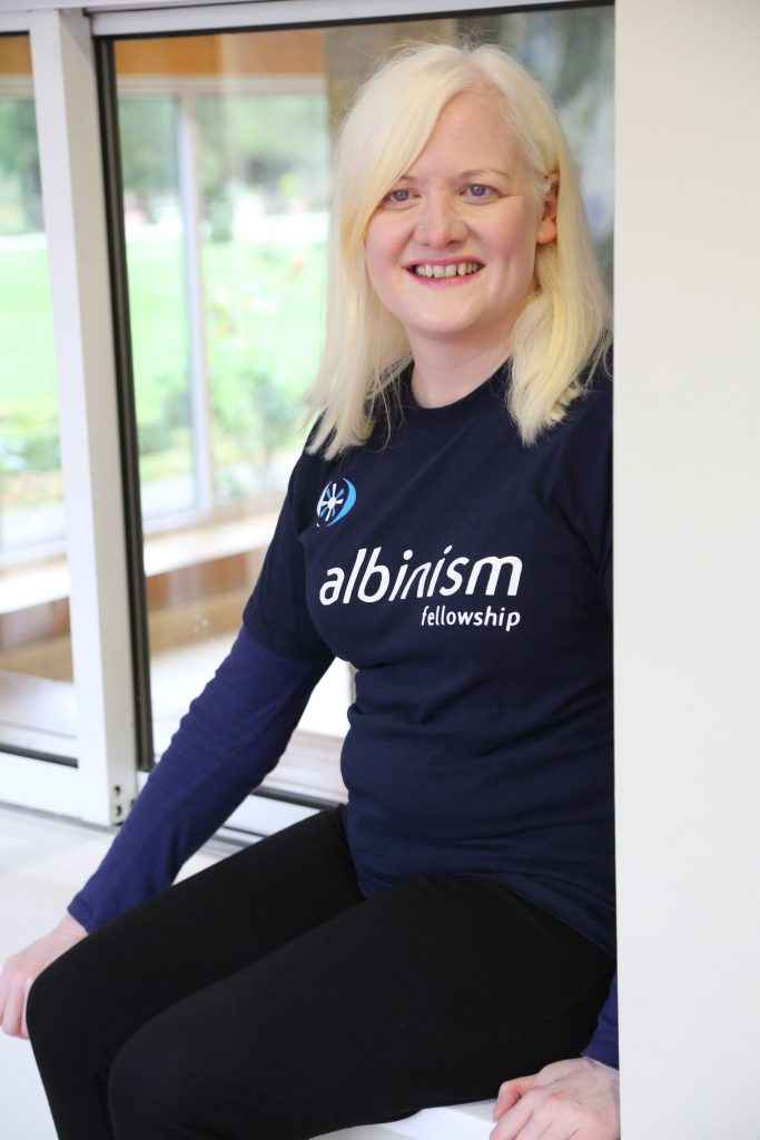 TODAY IS INTERNATIONAL ALBINISM  AWARENESS DAY