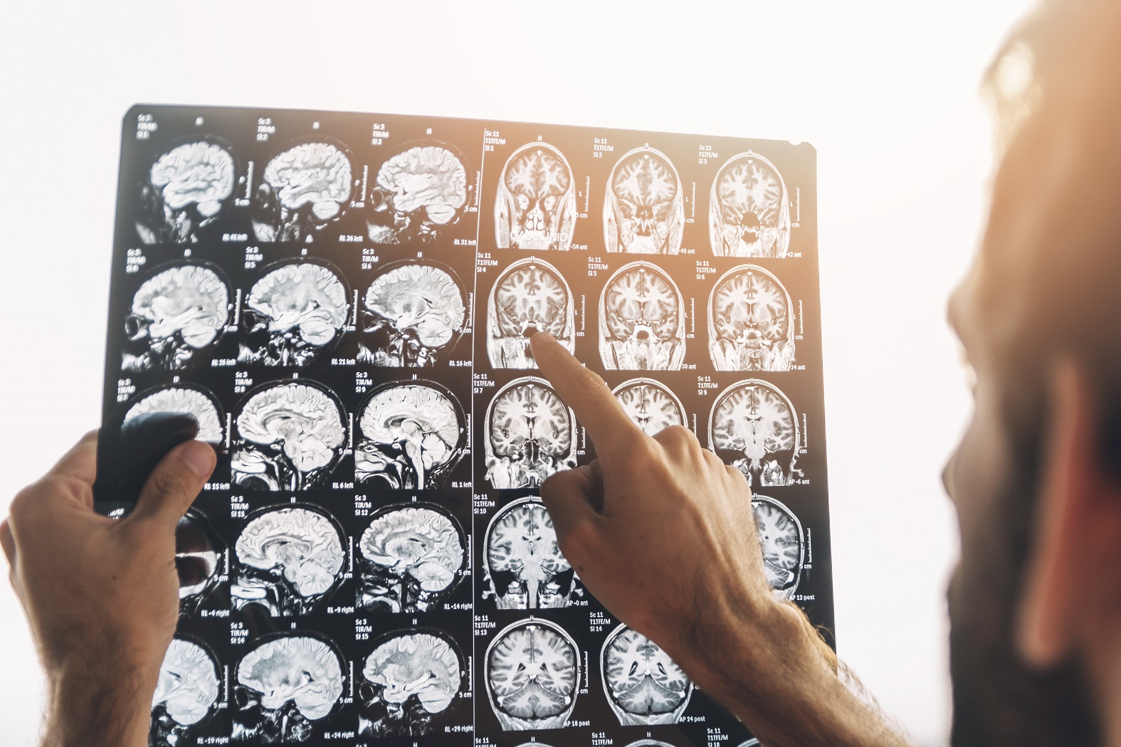Man reading CAT scans of the brain