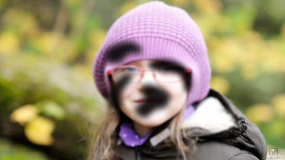 Image of a young girl with black spots over the image to simulate patchy or blurred vision