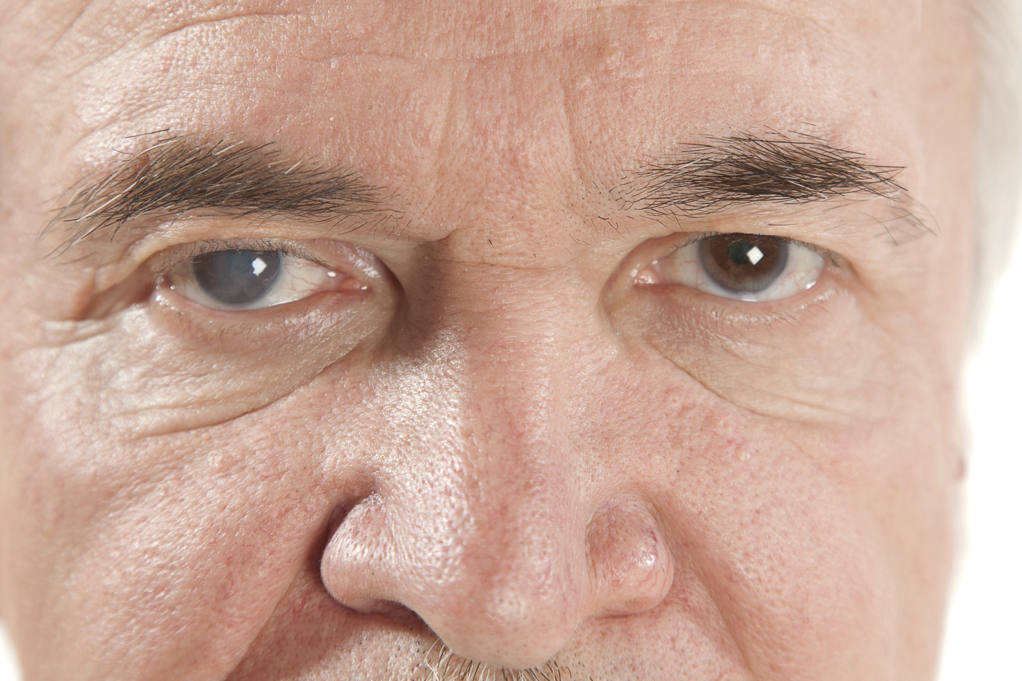 a man's eyes with cataracts